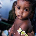 Malnutrition explained easily