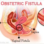 Situation Analysis of Obstetric Fistula in Bangladesh