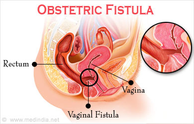 Anal fistula in women